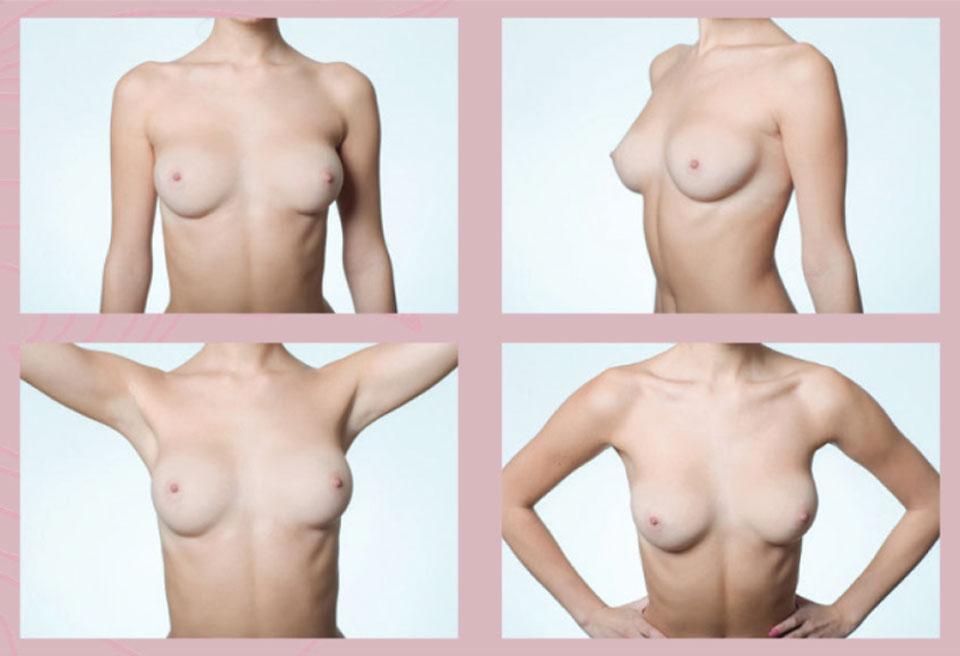 Samovyšetření prsu